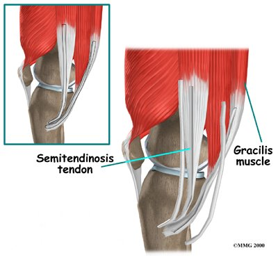Physical Therapy In Perrysburg For Knee